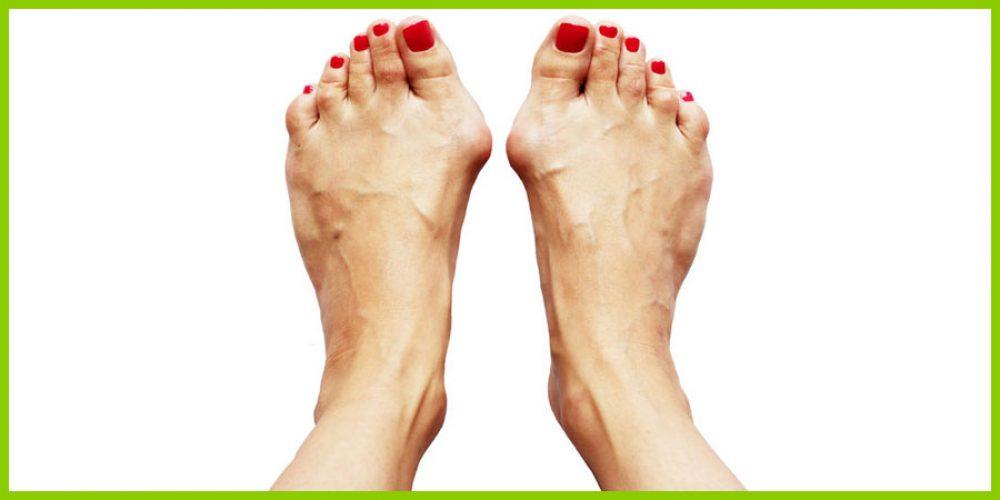 Wie den Zapfen auf dem Finger des Beines zu behandeln