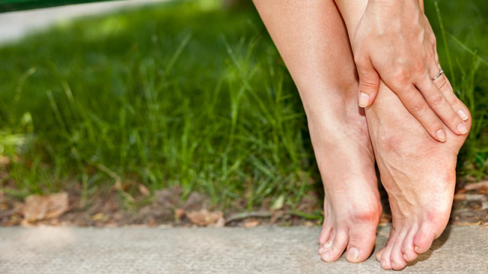 Was tun gegen geschwollene Beine?