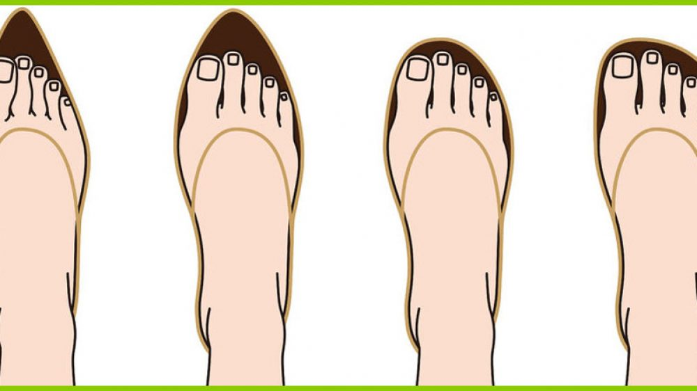 Schuhweite und Schuhlänge bei Hallux Valgus